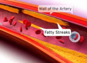 Artery walls and streaks of fat clogging arteries